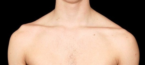 Lump On Front Of Collarbone/page/page